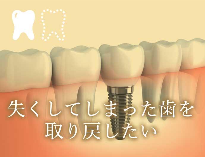 失くしてしまった歯を取り戻したい