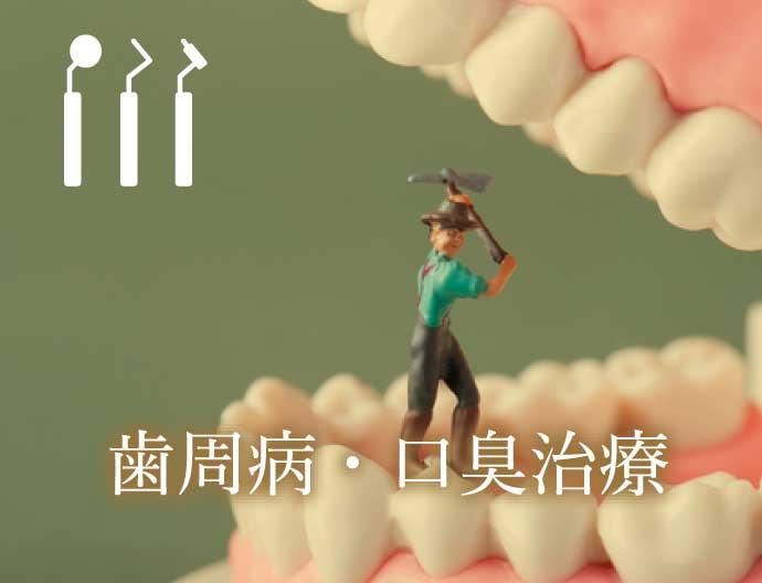 歯周病・口臭治療